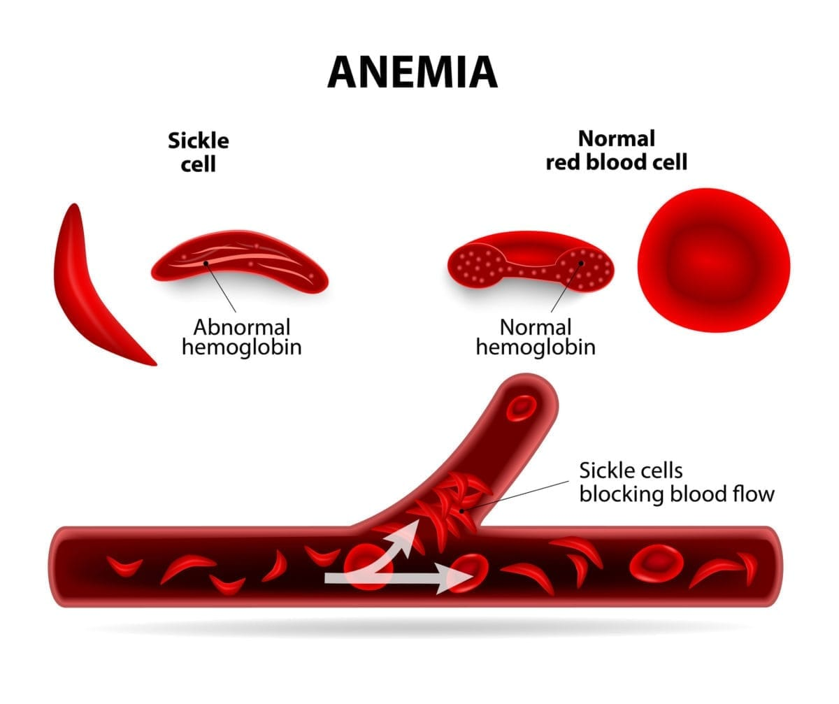 sickle cell disease - familydoctor