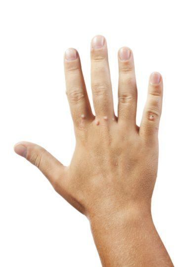 Warts on hands how to remove Mst papillomavirus homme traitement