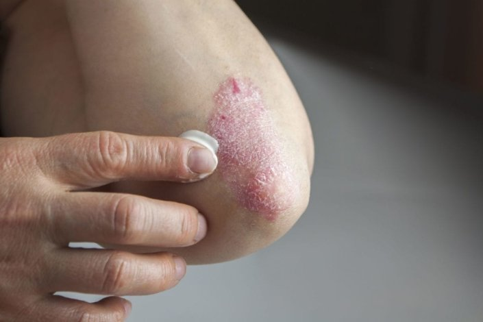 Woman applying lotion to psoriasis on her elbow