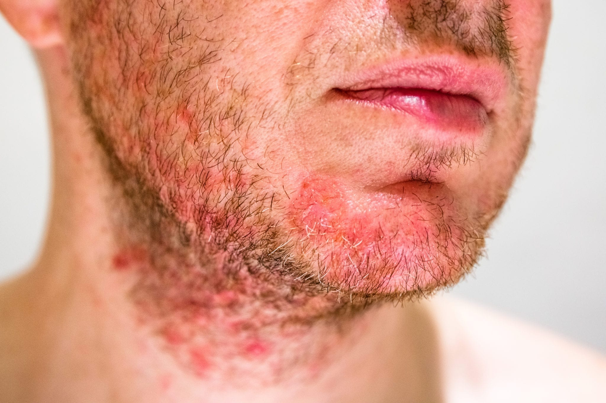 Seborrheic Dermatitis - Treatment & Causes | familydoctor org