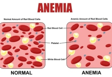 Illustrative comparison of normal amount of red blood cells and anemic amount of red blood cells