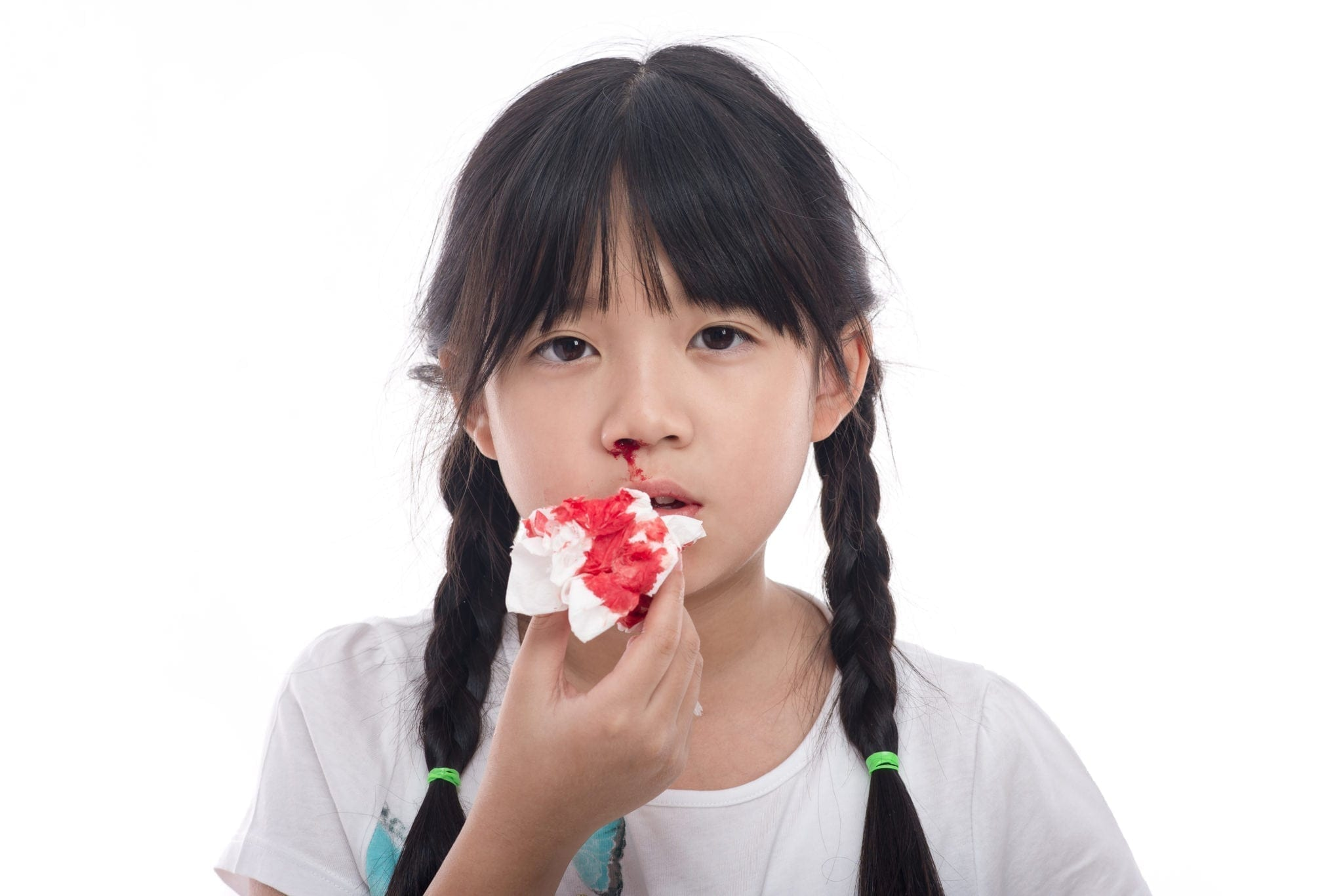 Nosebleeds: Causes and Treatment - familydoctor org
