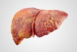 Realistic illustration of cirrhosis of human liver