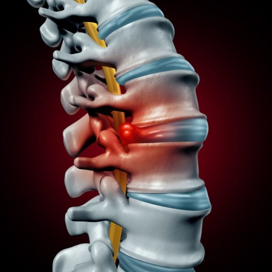 illustration of a spinal column with a herniated disk
