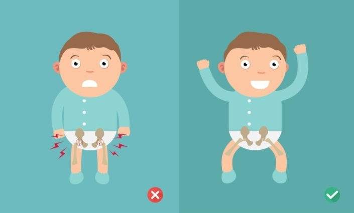 Best and worst positions for your baby to help prevent hip dysplasia