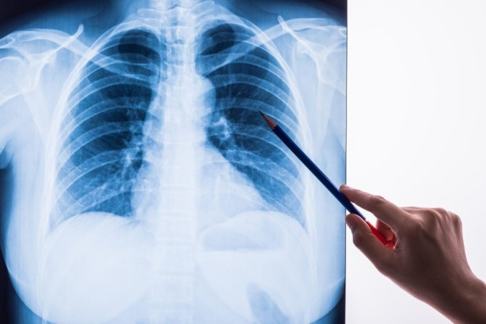 hand using pencil to point at chest X-ray