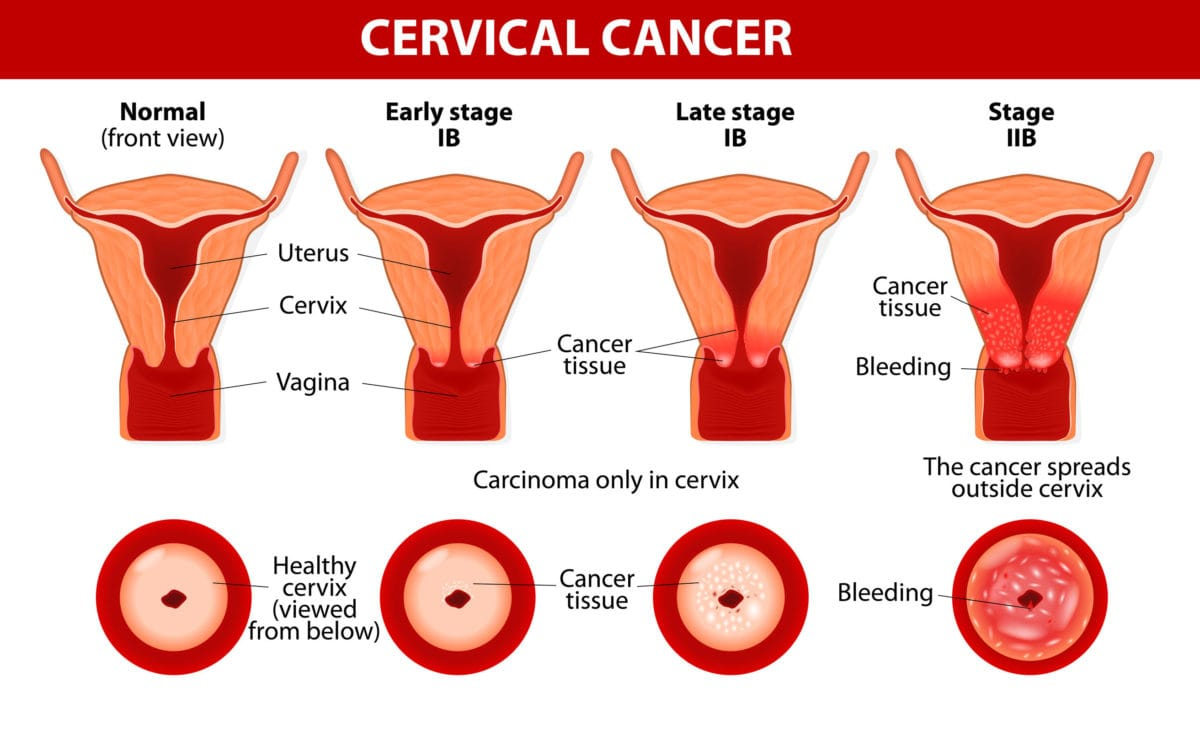 Cervical Cancer Familydoctor