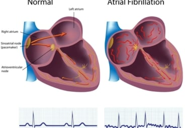 Illustration of a heart and heartbeat that is normal compared to one with atrial fibrillation