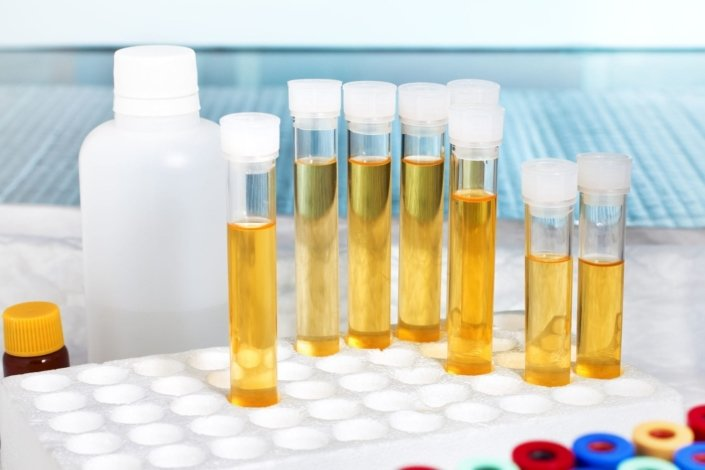 A laboratory rack with several tubes of urine ready for analysis