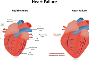 side-by-side diagrams of a healthy heart and one with heart failure