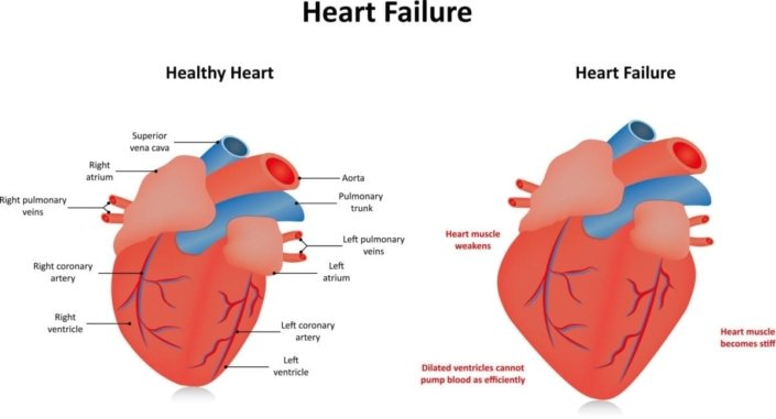 Heart failure familydoctor side by side diagrams of a healthy heart and one with heart failure ccuart Image collections