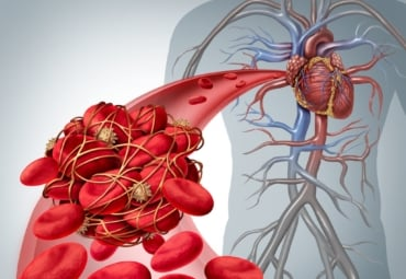 What Causes Blood Clots? - Symptoms | familydoctor org