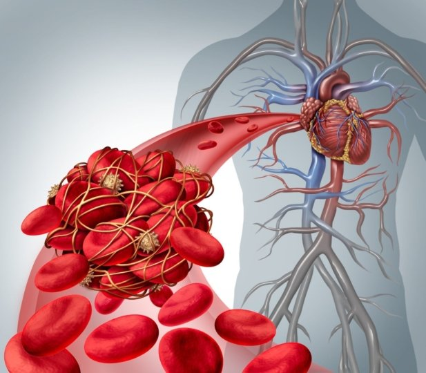 Illustration of a blood clot in an artery leading to the heart