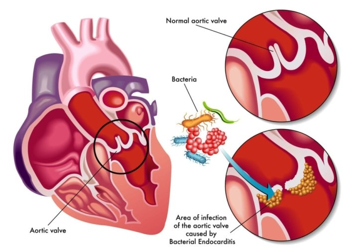 Illustration of a normal aortic valve and an infected aortic valve caused by bacterial endocarditis