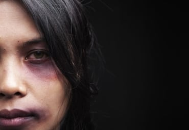 Young woman with black eye