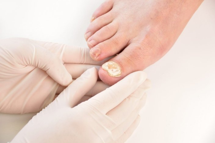 Fungal Nail Infection - Infected Finger Nail | familydoctor.org