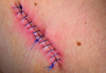 Stitched up wound after surgery.