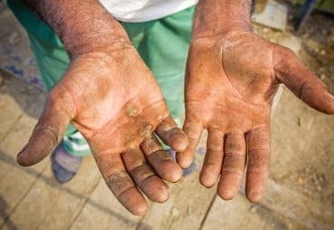 Worker shows his chapped, injured, and dirty palms