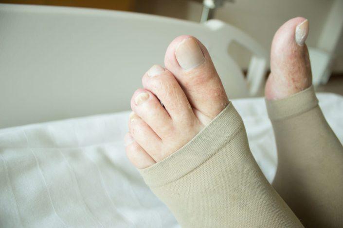 Close up shot of woman wearing deep vein thrombosis stockings on her feet
