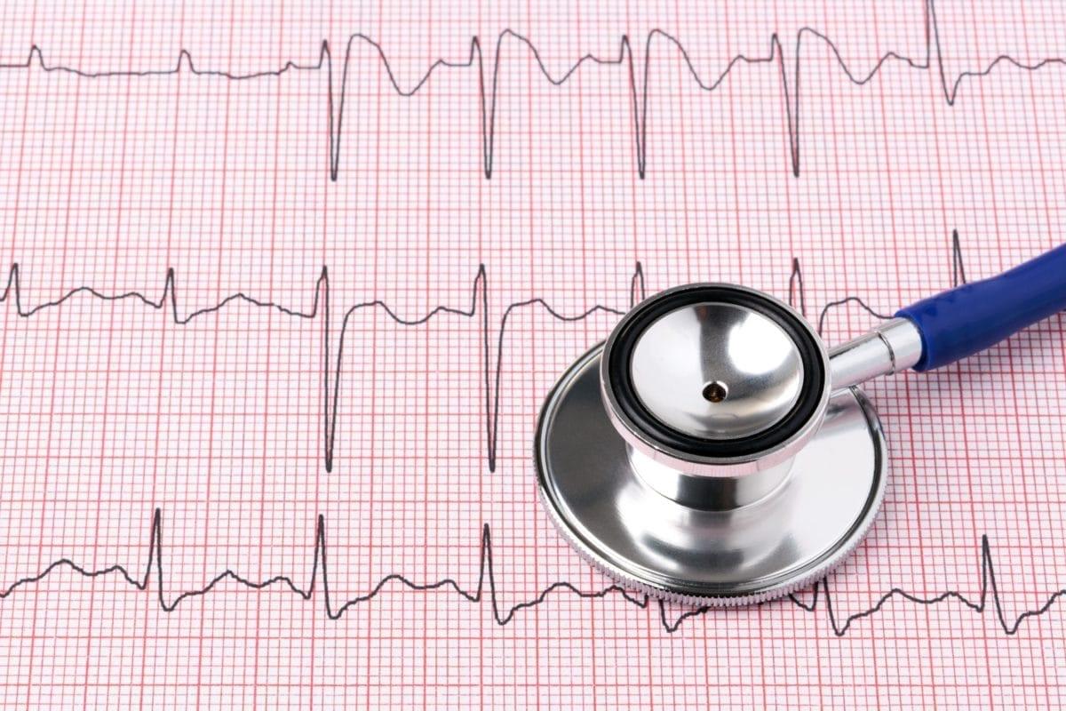 Heart Palpitations - familydoctor org