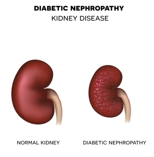 Image showing normal kidney and one with diabetic nephropathy