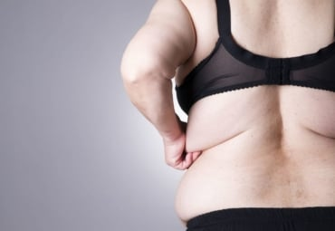 Overweight female with fat folds under her bra clasp in the back