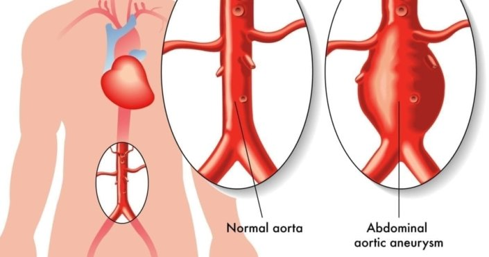 Illustration of a human body with close-ups of a normal aorta and one with an abdominal aortic aneurysm