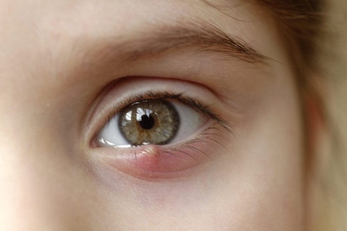 closeup of a sty on a child's eye
