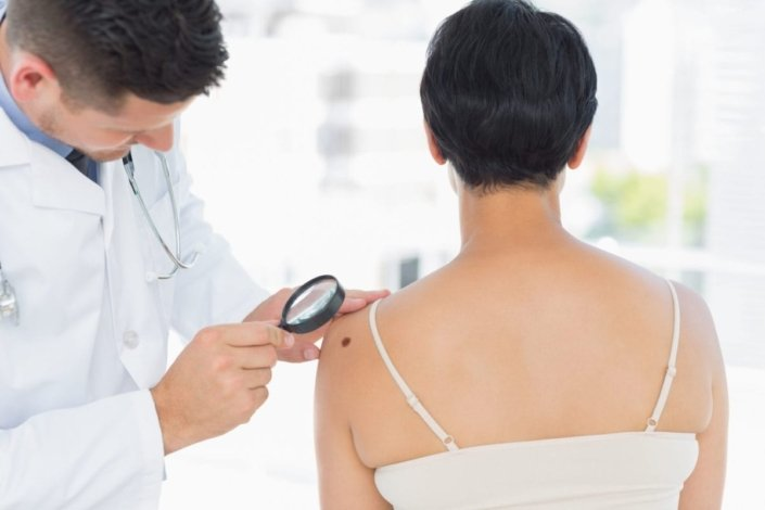 Dermatologist using a magnifying glass to examine an atypical mole on a woman's shoulder