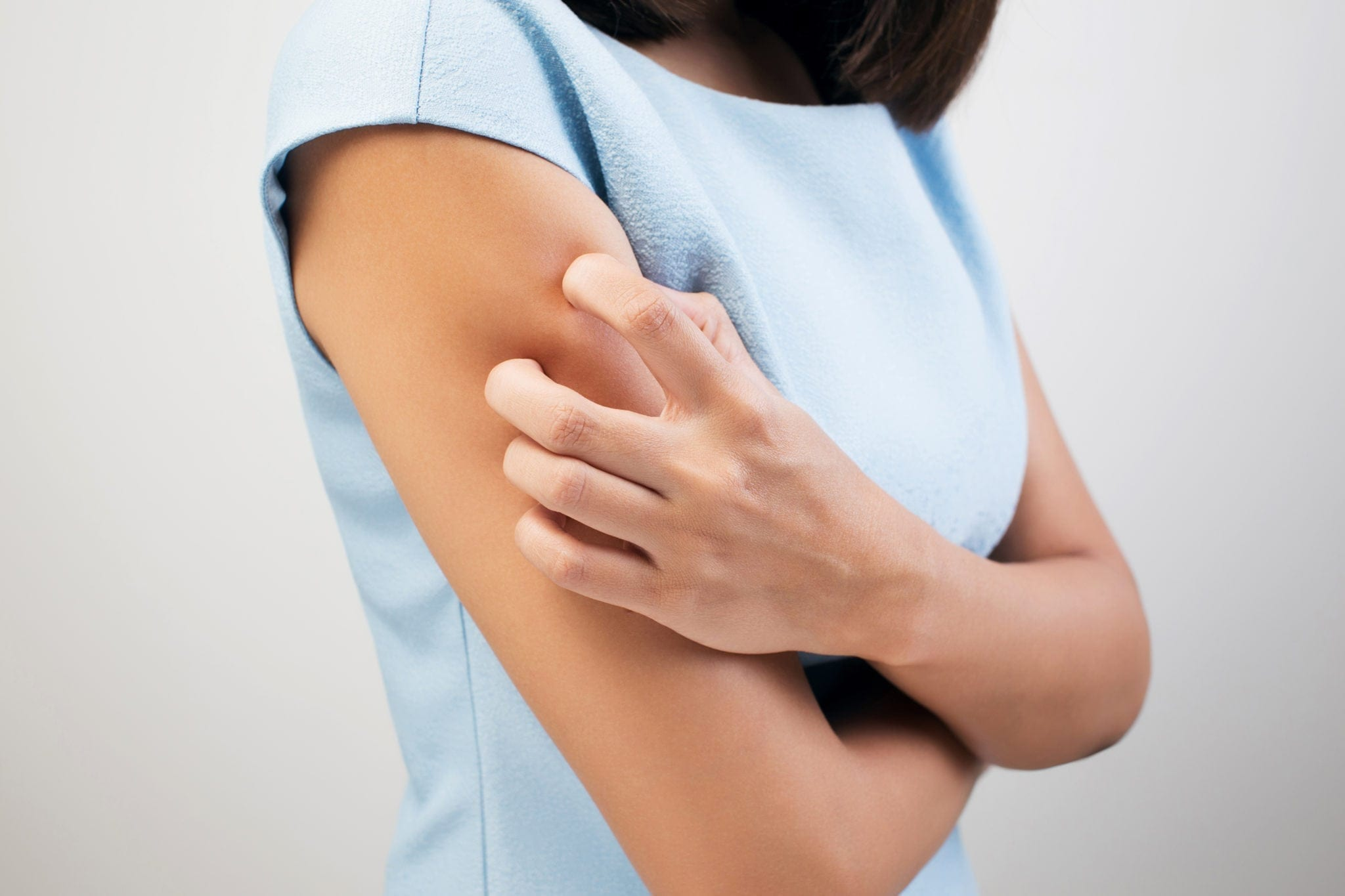 Keratosis Pilaris - Causes and Treatment | familydoctor org