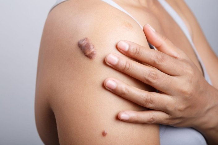 How To Get Rid Of Keloids - Treatment | familydoctor org