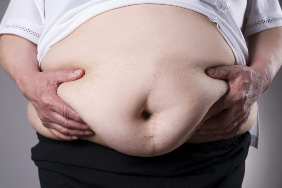 An obese woman's bare stomach that has a prominent scar