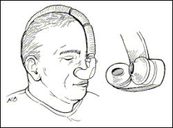 Nasal pillow illustration
