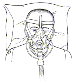CPAP Face mask illustration