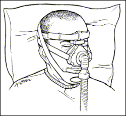 CPAP Face mask with chin strap illustration