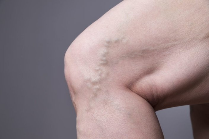 A varicose vein is visible on the side of a woman's knee