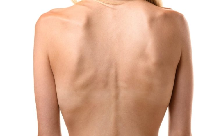 Rear view of the back of a thin woman showing ribs and spine