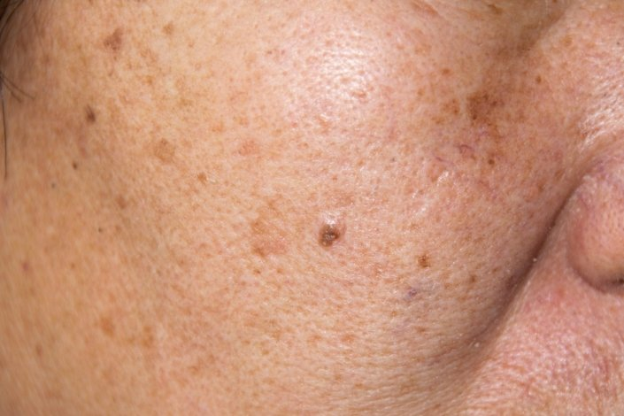 What Is Melasma? - Treatment - Causes | familydoctor org