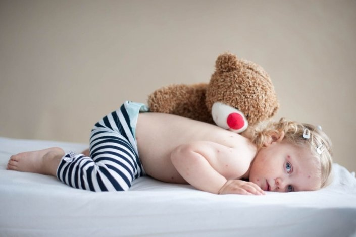 Toddler with chickenpox lying on stomach