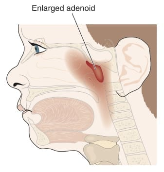 Illustration of enlarged adenoid