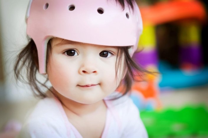 A baby girl wearing a medical helmet who has plagiocephaly smiling at the camera