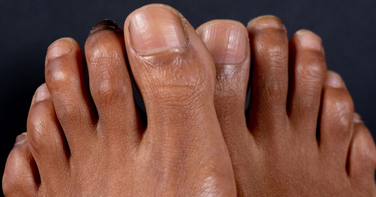 Up why do toes curl Crooked Toes,