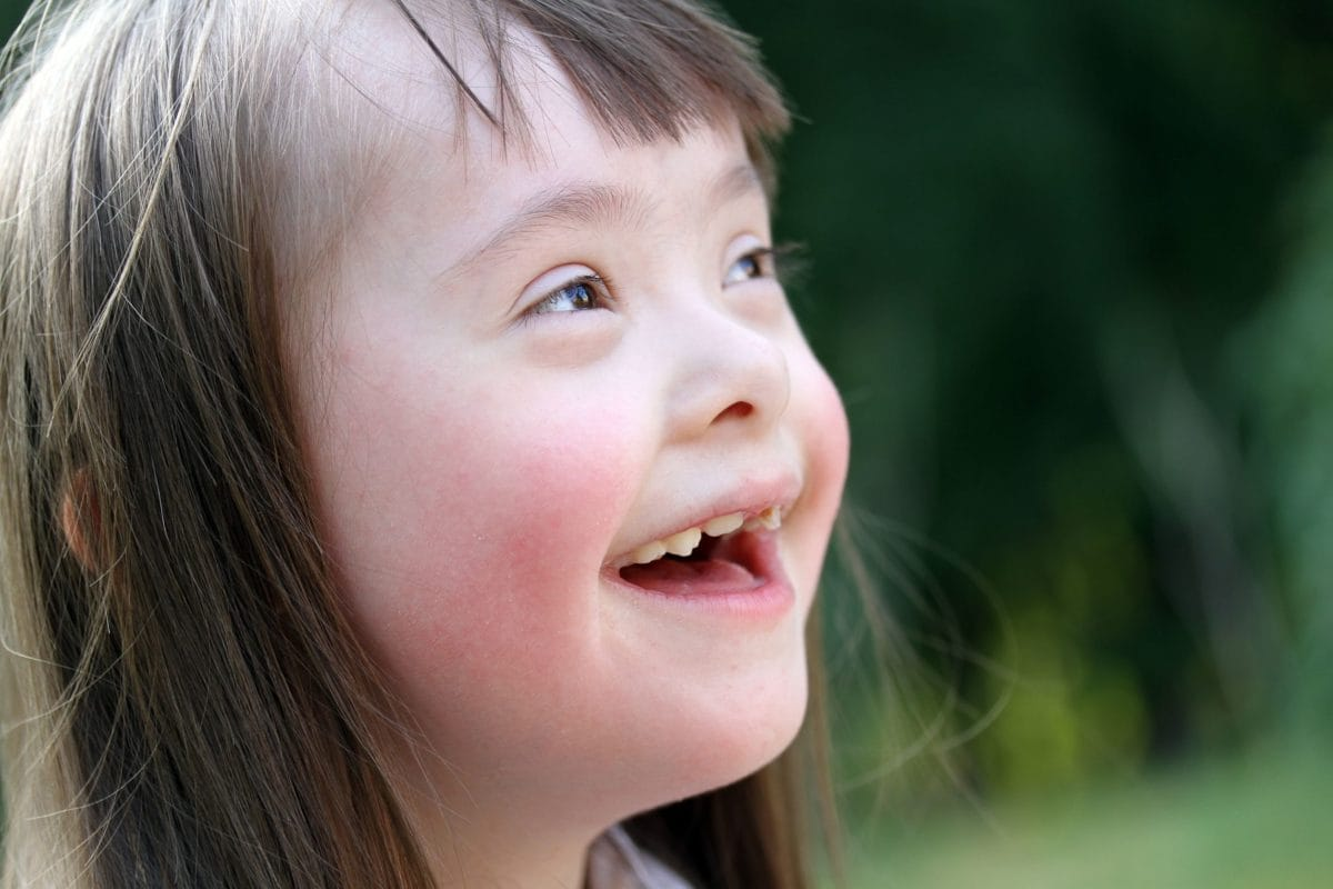 Down Syndrome - familydoctor org