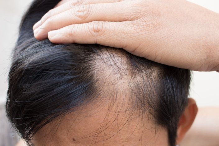 Alopecia Areata (AA) - Alopecia Areata Symptoms