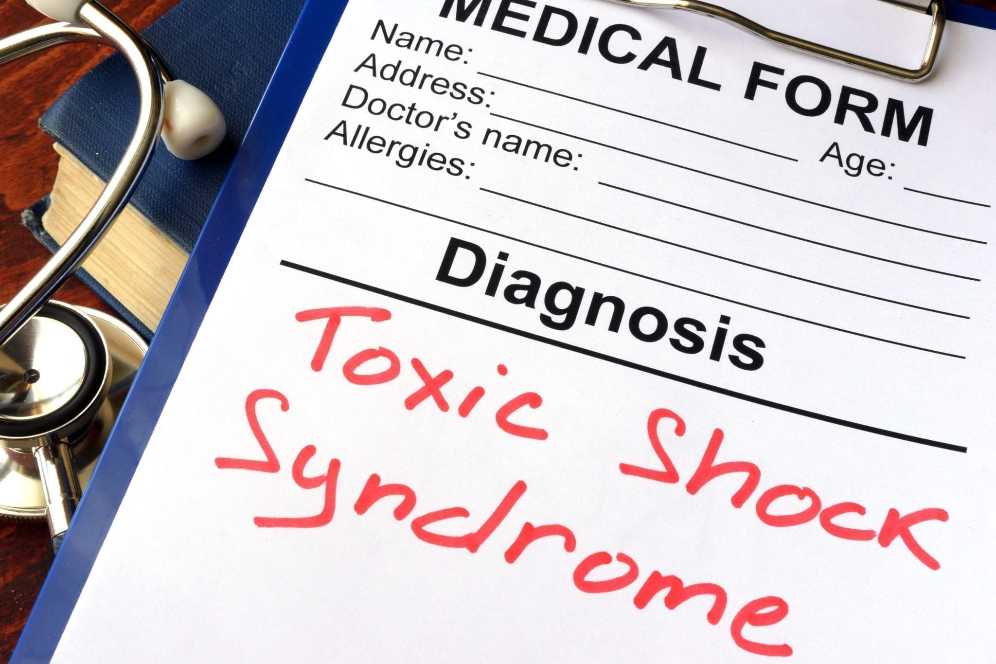 Toxic Shock Syndrome - Symptoms and Causes | familydoctor org