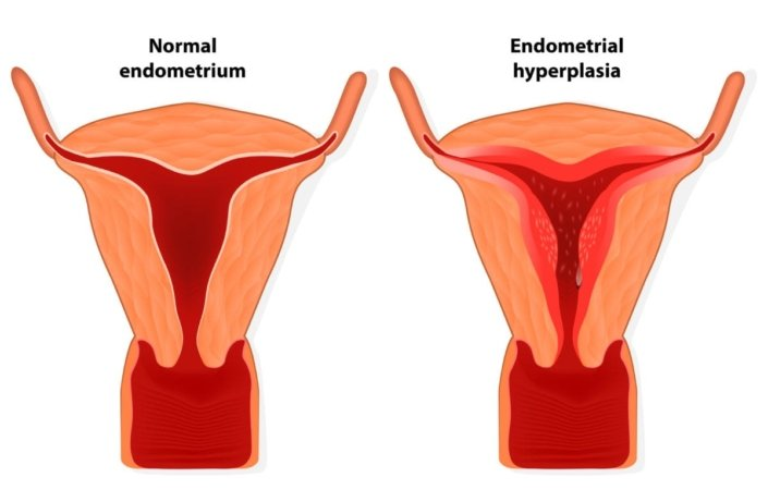 Visual difference between a normal endometrium and endometrial hyperplasia