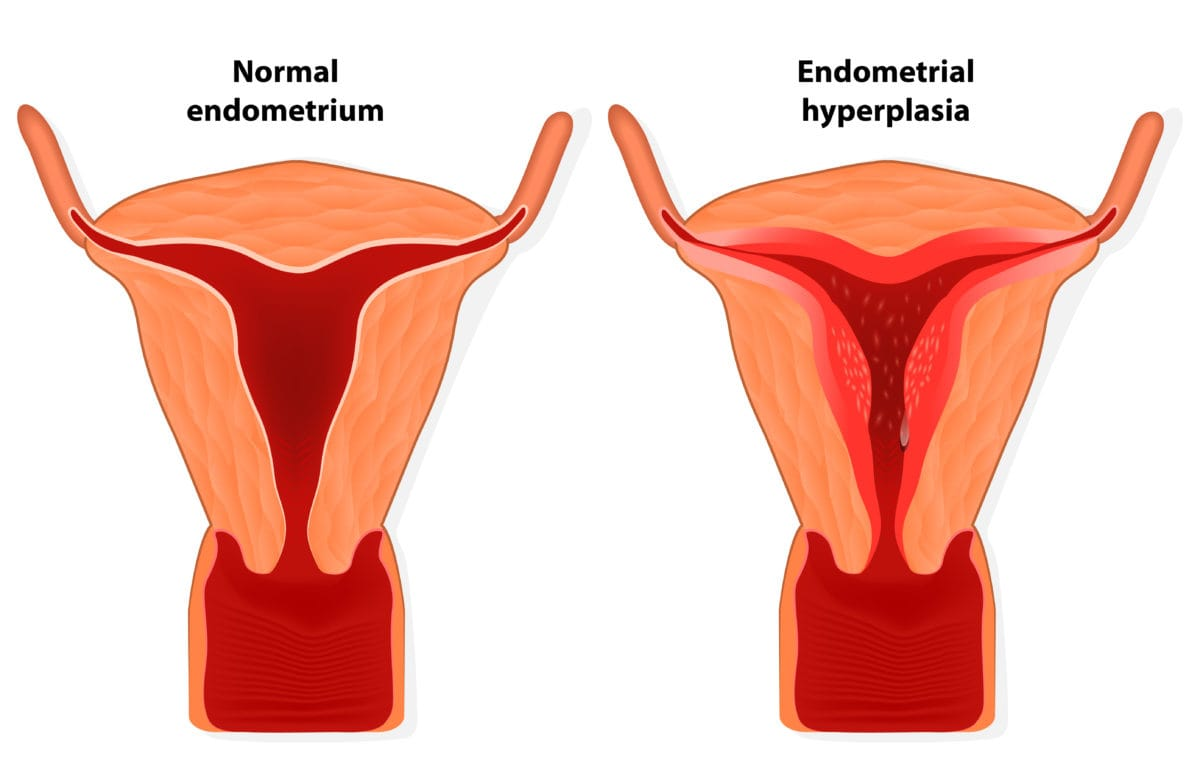 Endometrial Hyperplasia - Symptoms and Treatment | familydoctor org