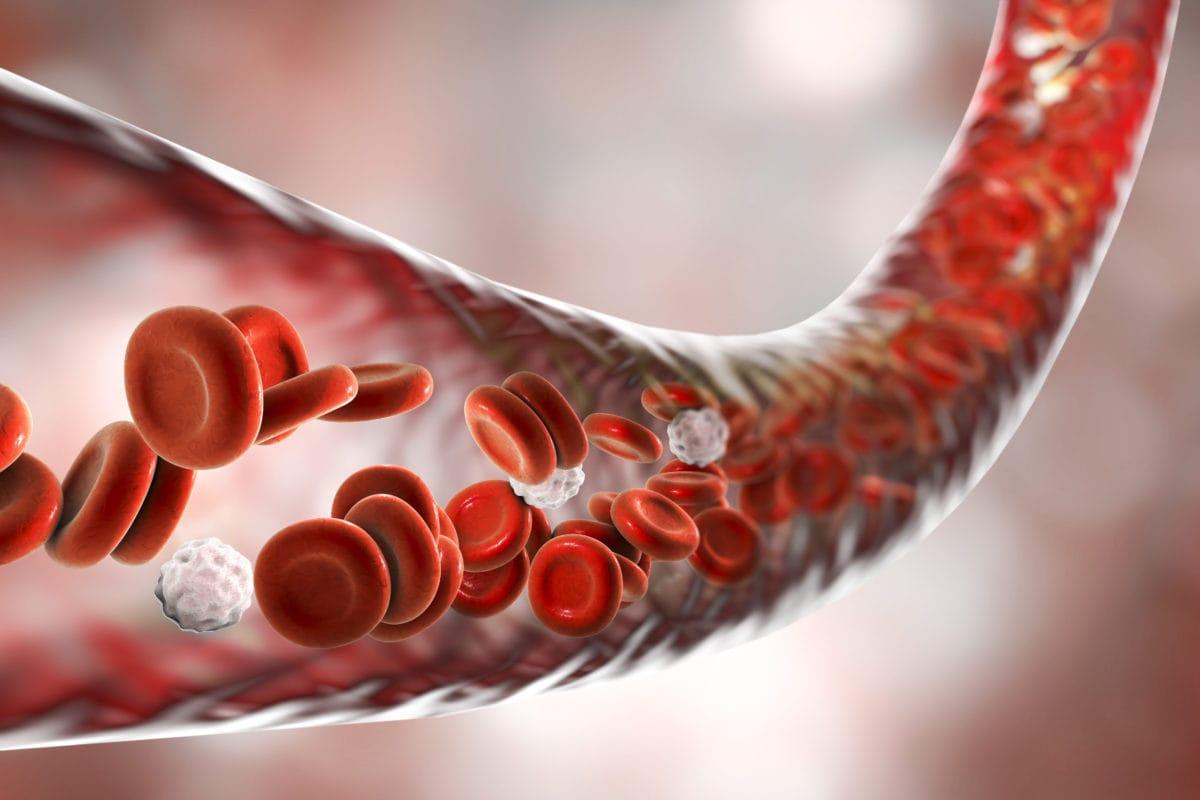 Blood Poisoning - Sepsis - Symptoms | familydoctor org