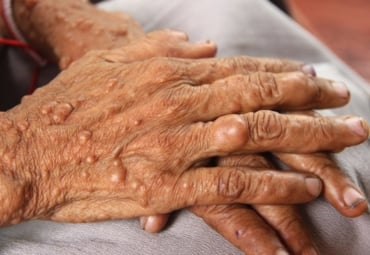 Hands of woman who has neurofibromatosis, a genetic disorder that causes tumors on skin.