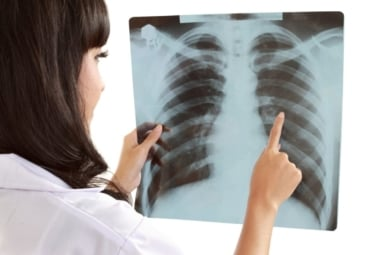 Female doctor examines X-ray of a patient's lungs